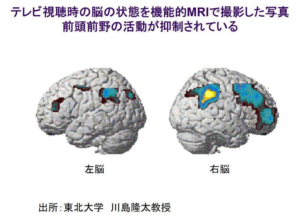 ネット動画、認知症にどう影響?