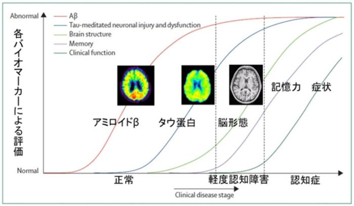 アルツハイマー病の進展過程